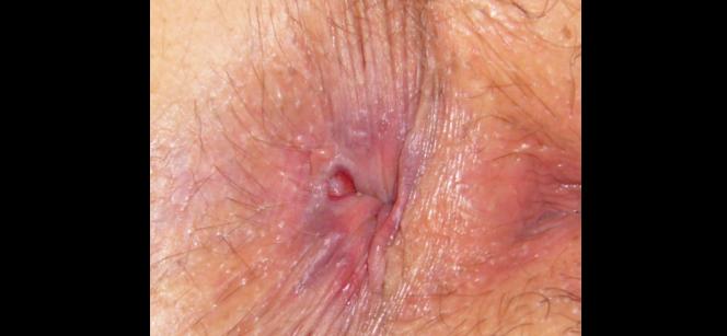 Bendaggio a un varicosity